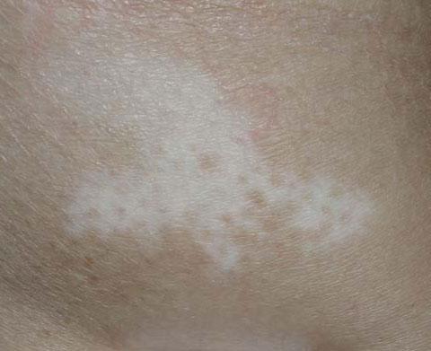 Bielactwo Dermest Gabinet Dermatologii Ogólnej Estetycznej